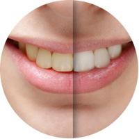 Blanqueamiento dental en San Sebastián