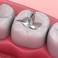 Empastes dentales en Donostia