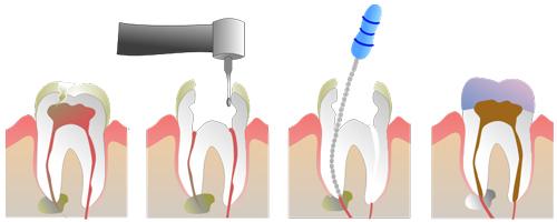 Tratamiento de endodoncia en San Sebastián