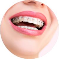 Tratamiento de ortodoncia en Donostia
