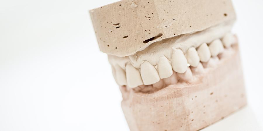 Prótesis dentales en San Sebastián