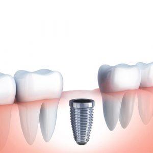 Cirugía oral implante Donostia