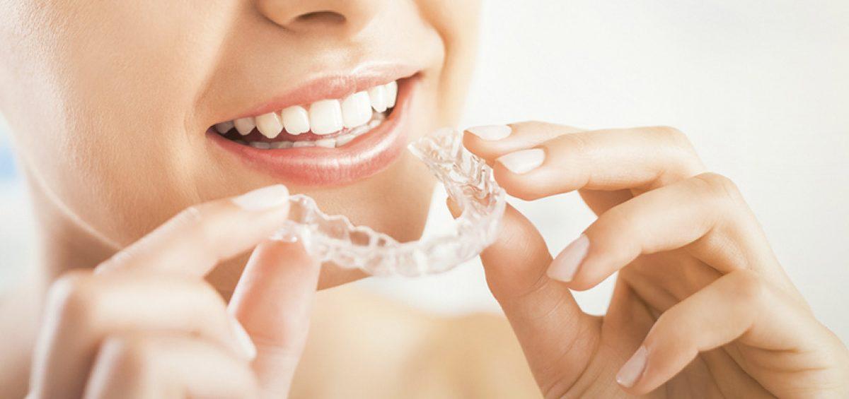 Sonrisa perfecta sin brackets invisalign la ortodoncia invisible - Como alinear los dientes en casa sin brackets ...