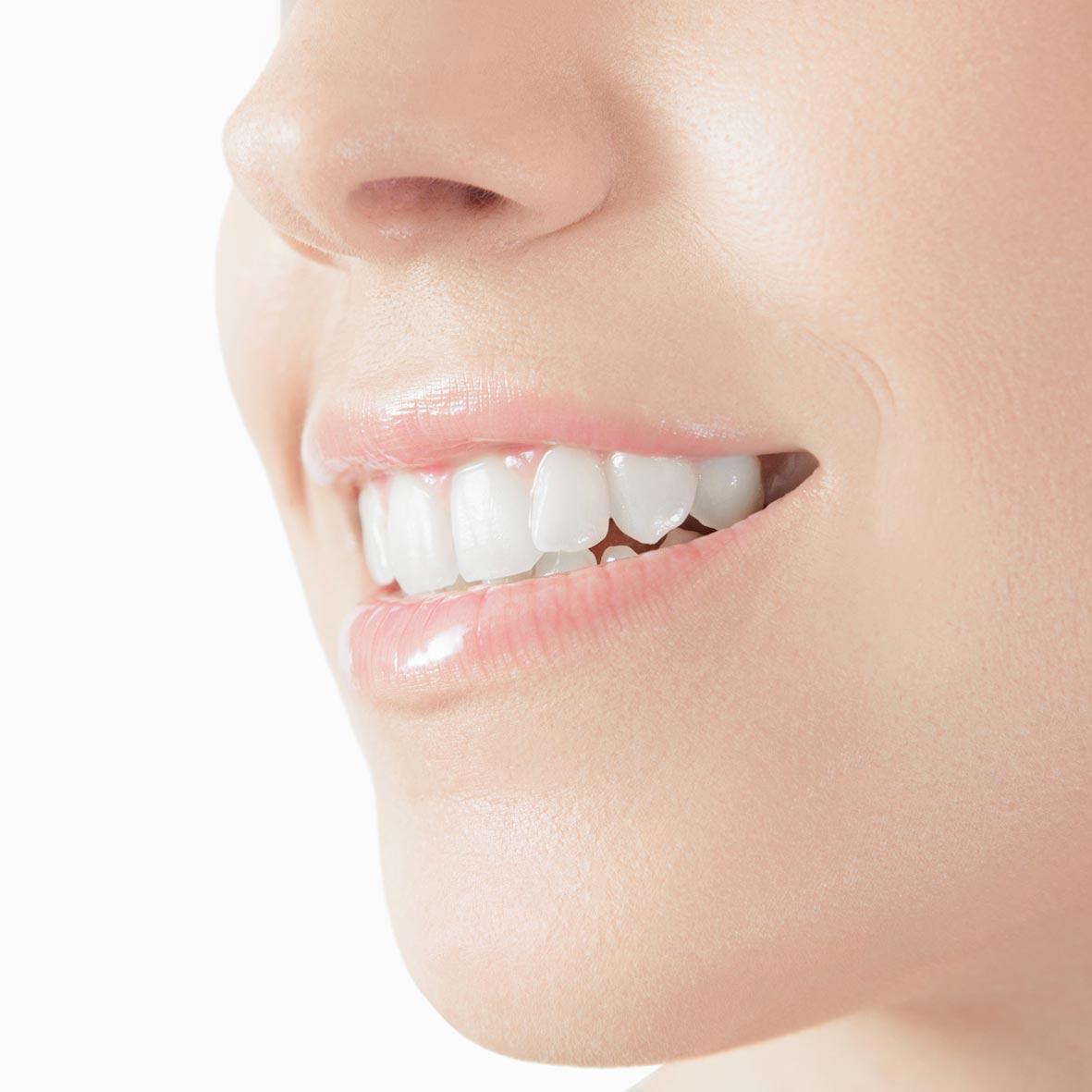 dientes-blancos-donostia
