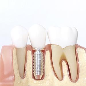 protesis-sobre-implantes
