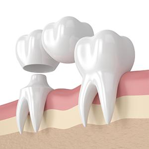 protesis-sobre-dientes
