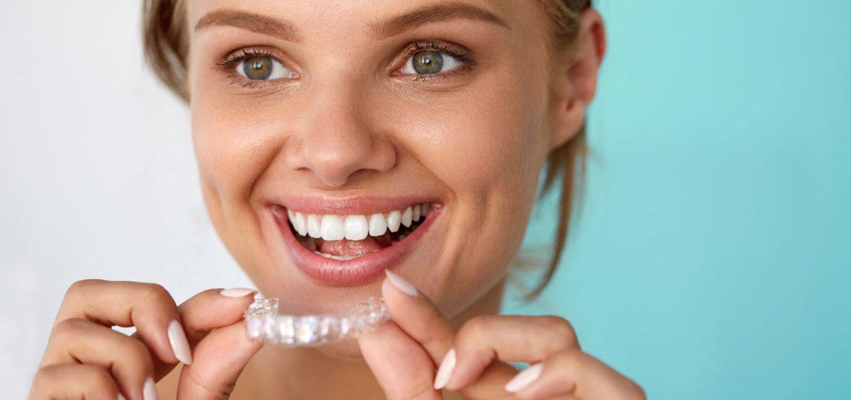 Qu ventajas tiene invisalign la ortodoncia invisible - Como alinear los dientes en casa sin brackets ...