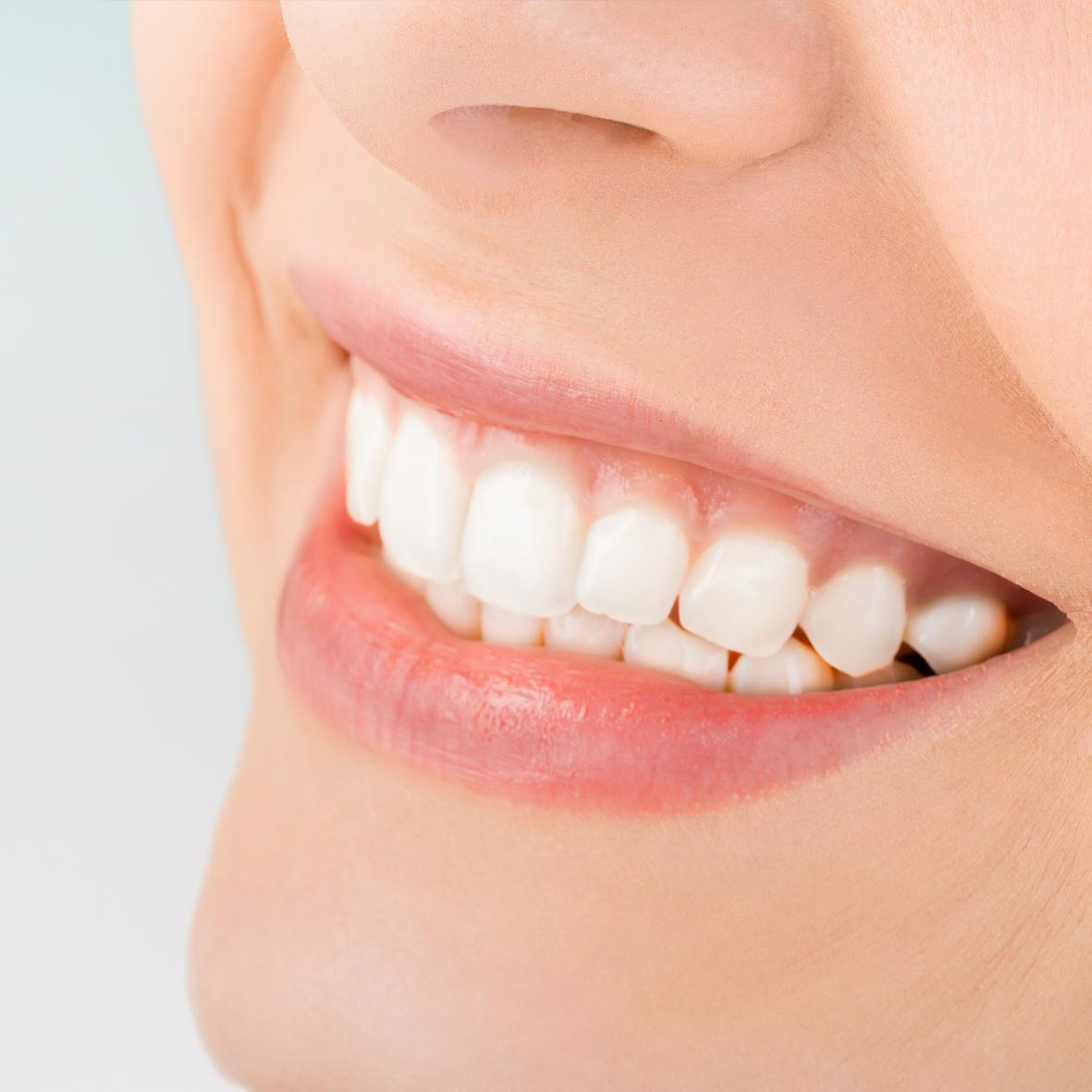 ¿Por qué realizarte un blanqueamiento dental en nuestra clínica dental?
