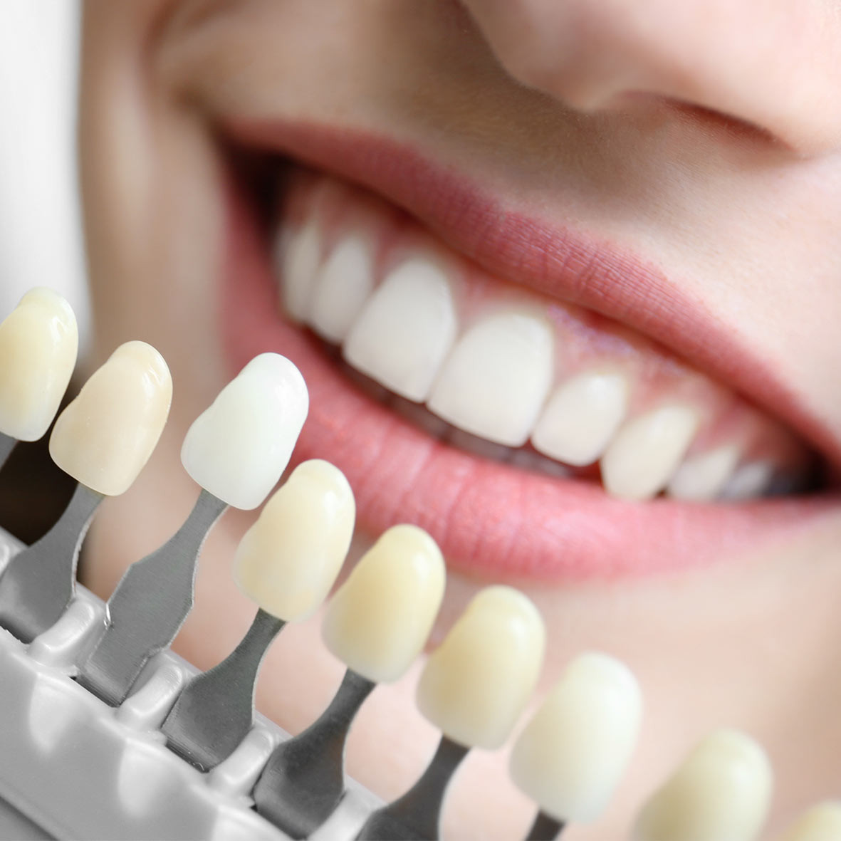¿Cómo se realiza un blanqueamiento dental?