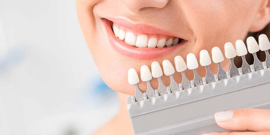 Blanqueamiento dental en Donosti-San Sebastián