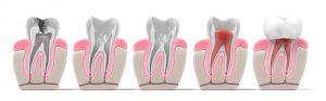 ¿Cómo se realiza una endodoncia? Endodoncia en Donostia.