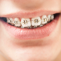 Ortodoncia con brackets en nuestra Clínica dental en Donostia