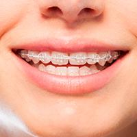 Ortodoncia con brackets Damon en nuestra Clínica dental en Donostia