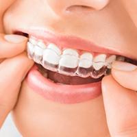 Ortodoncia Invisible en nuestra clínica dental en Donostia