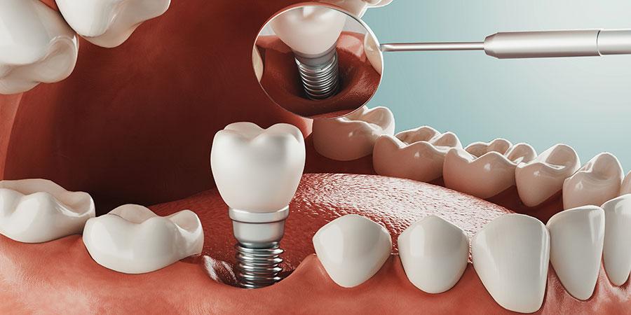 Contraindicaciones implantes dentales